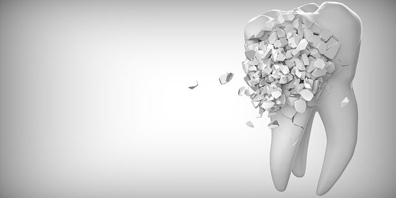 Zahnarztprobleme