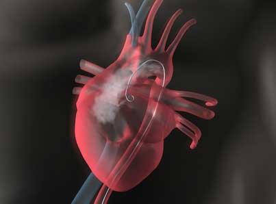 Herzkatheteruntersuchung